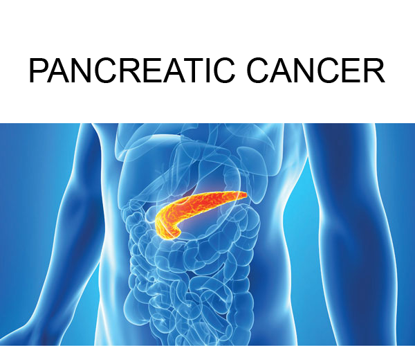 Pancreatic cancer – South Florida Sugical Oncology