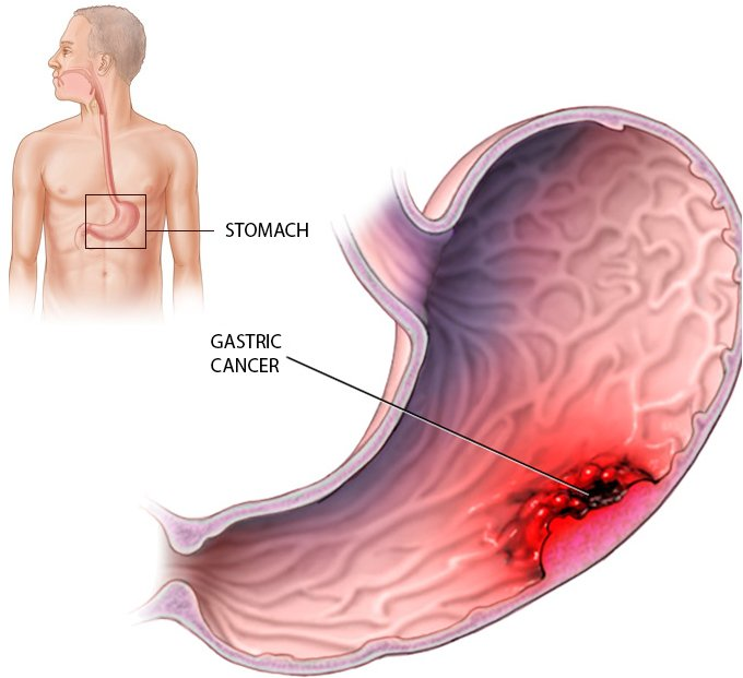Gastric Cancer South Florida Sugical Oncology