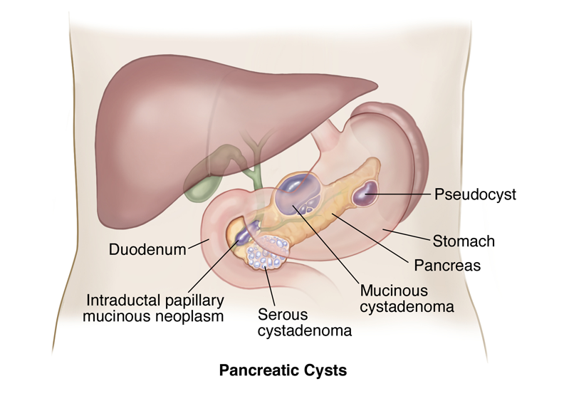 Pancreatic Cysts – South Florida Sugical Oncology
